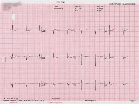 abnormal ekg dizziness high blood pressure picture 13