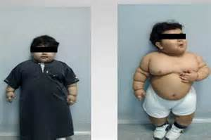 toddler weight loss picture 1