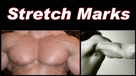 why do i get stretch marks when weight lifting picture 1