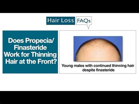 osi works hair loss picture 9