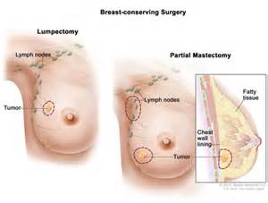 breast cancer end of treatment summary picture 12