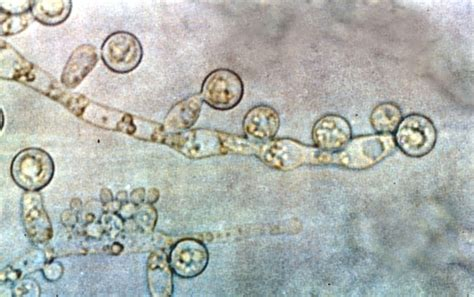 untreated yeast infections picture 5