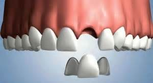 maryland tooth whitening picture 2