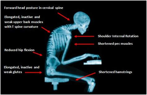upper back pain relief picture 6