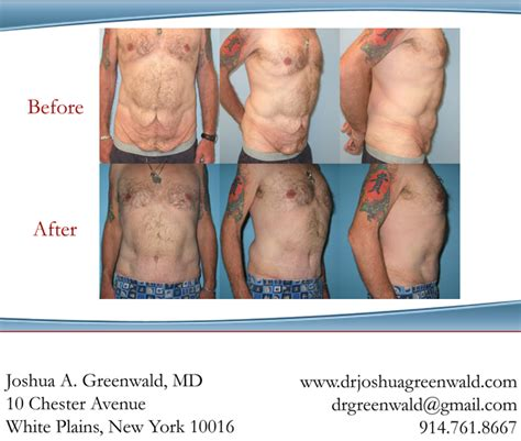 breast enhancement surgeons in westchester county picture 7