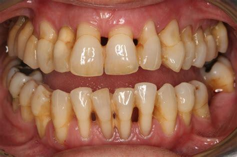 boneloss in teeth picture 5