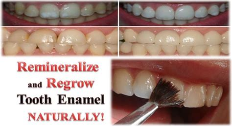 can natural teeth grow picture 3