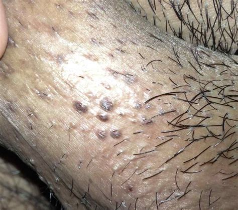 genital wart hair growth picture 13