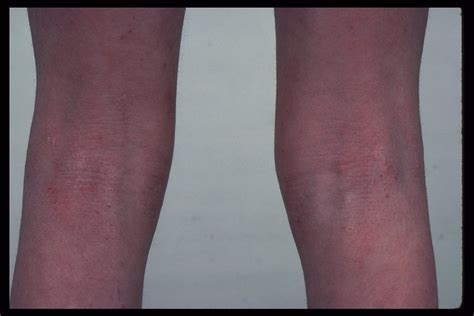 vlack dermatologist for black skin picture 5