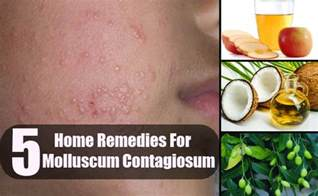 home remedies to treat molescus picture 2