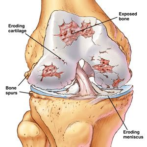 bone and joint pain picture 18