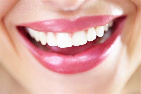 whiten teeth picture 11