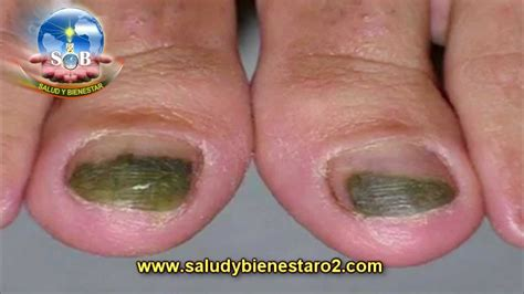 fungus in nail picture 2