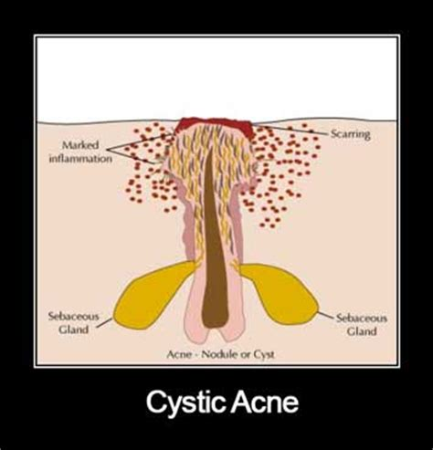 cystic acne causes picture 1
