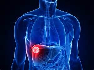 liver pain that goes above my rib cage picture 5