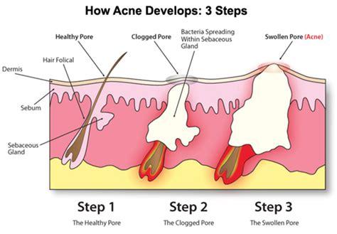 hair loss zinc deficiency picture 11