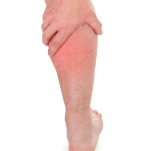 thigh chafing swollen treatment picture 7