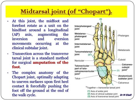 lisfranc joint picture 14