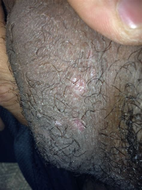 do i have yeast infection picture 15