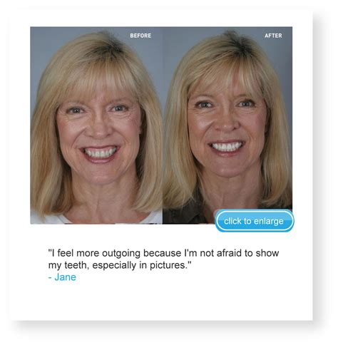arctic teeth whitening picture 2