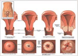 pregnancy test and yeast infections picture 13
