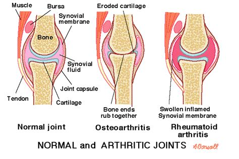 joint pain arthritis picture 13