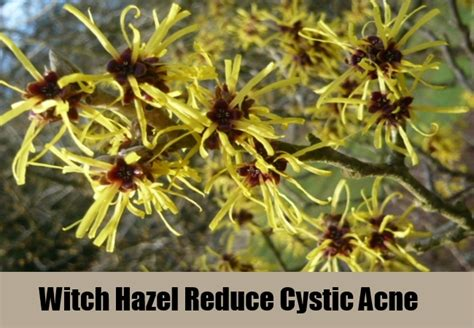 witch hazel is great for acne picture 7