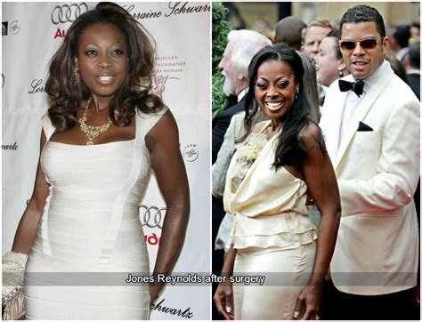 star jones reynolds weight loss picture 5