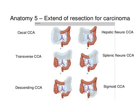 resection liver metastases colon cancer picture 10