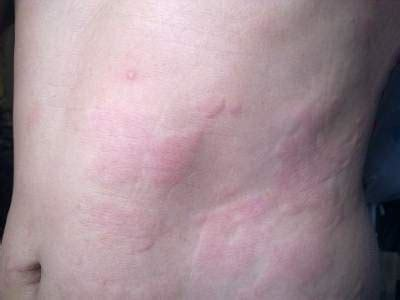 idiopathic hives picture 3