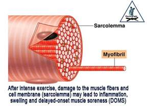 muscle pain picture 6