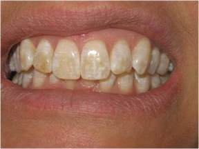 discolored teeth fluorosis picture 11