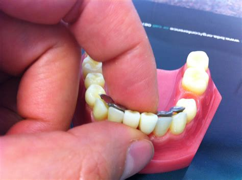 can dental hygienist remove cement from h with picture 10