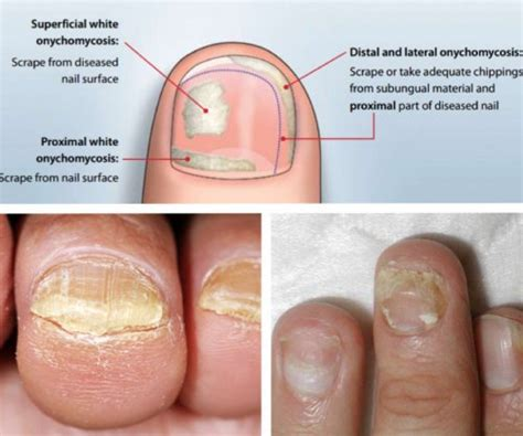can candida cause toe nail fungus picture 7