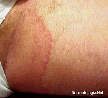 white spots on skin that cause fungi picture 13
