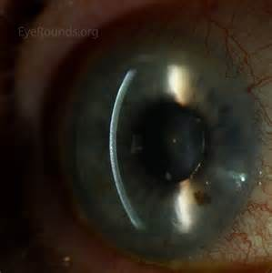 herpes on the eye picture 2