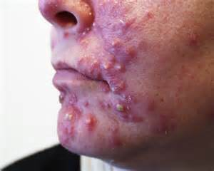 alesse acne picture 1