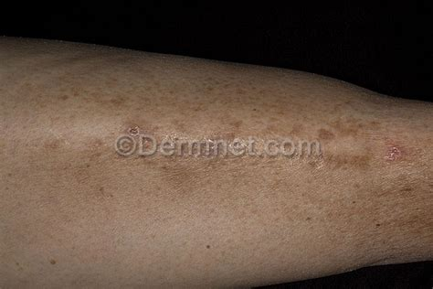 diabete and skin picture 1