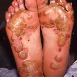 intestinal bacterial infection picture 9