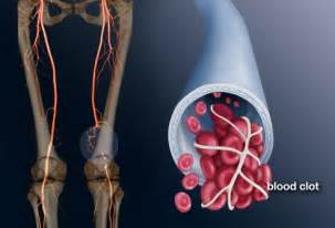 can pressure on nerves to legs cause blood clots picture 7