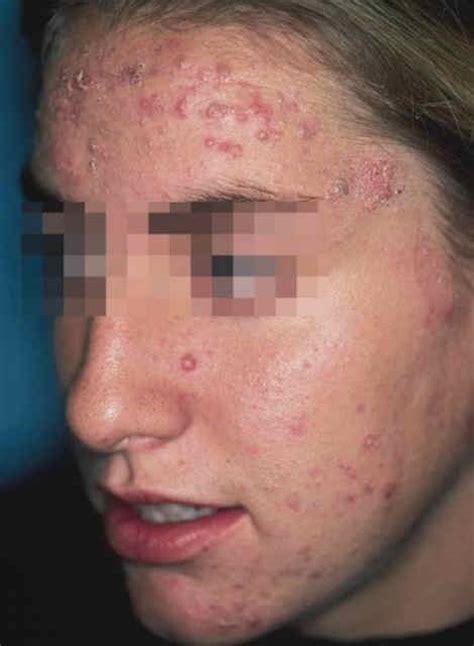 acne records picture 2