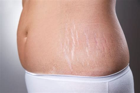 reduce stretch marks picture 6