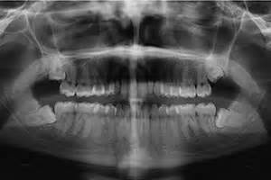 correcting impacted teeth picture 6
