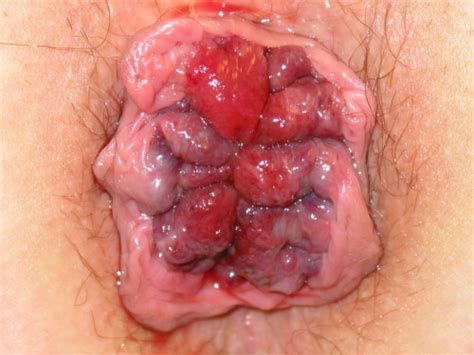 what are the symptoms of intestinal cancer picture 10