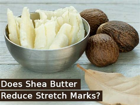do stretch marks decrease when toning the body picture 12