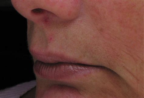 acne treatment bay area picture 5
