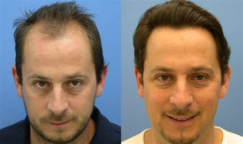 cost of hair transplants picture 9