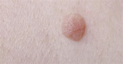 wart seed picture 6