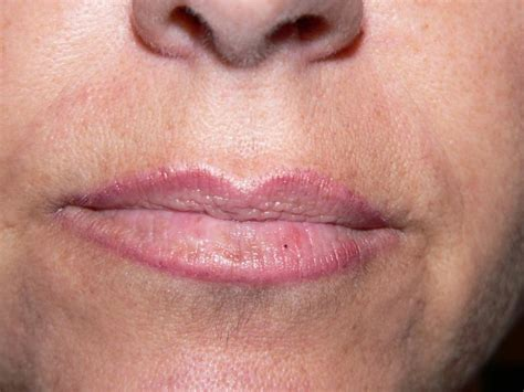 herpes on lips picture 3