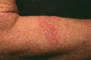 symptoms of herpes picture 7